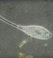 Protozoa under microscope